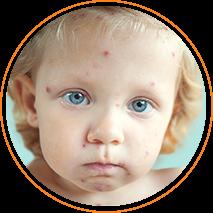 Банеоцин помогает при дерматите